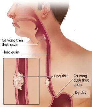 Nguyên nhân và triệu chứng gây ung thư thực quản