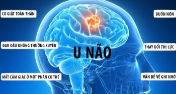 Những dấu hiệu và triệu chứng cảnh báo bệnh u não