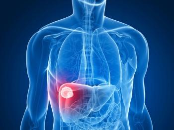 Những điều cần biết về ung thư gan
