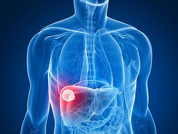 Bạn nên tầm soát ung thư gan ngay khi thấy những dấu hiệu này