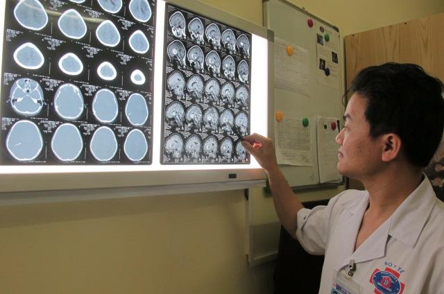 Hình ảnh khối u trong não trẻ có kích thước lớn, 6x7cm
