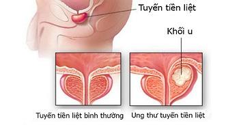 Ung thư vòm họng và những điều bạn cần biết