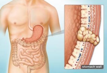 Tổng quan về bệnh u mô đệm đường tiêu hóa