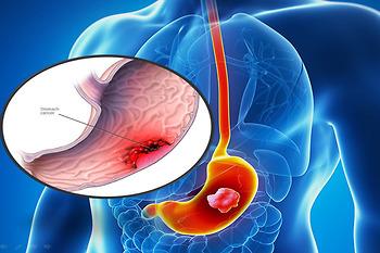 Nhóm đối tượng nào có nguy cơ mắc ung thư dạ dày cao hơn?