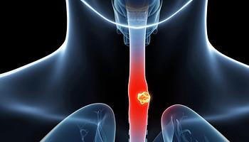 Ung thư thực quản và những điều cần lưu ý để phòng tránh